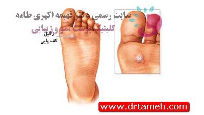 ربرداشت خال و ضایعات پوستی